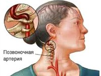 pozvonochnie-arterii
