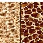 osteoporosis-diagnostics-treatment