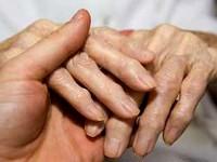 Болезнь остеоартрит