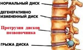 protruziya-pozvonochnika