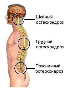 lechenie-sheynogo-osteohondroza-2
